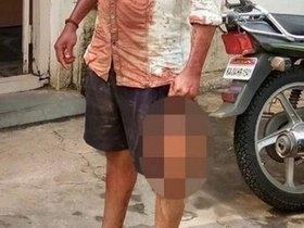 Homem vai a delegacia com a cabeça de vítima decapitada por ciúme