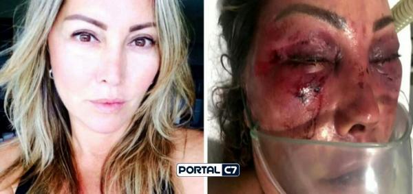 Violência: Mulher é espancada por homem em primeiro encontro