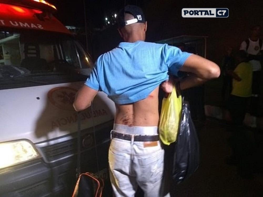 Salvador: Ônibus capota e 27 deixa feridos; um passageiro teve braço amputado
