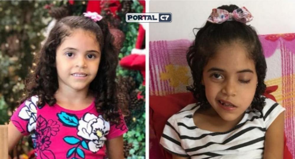 Ana Júlia, 6 anos, tem vários tumores na cabeça (Imagem: Divulgação)