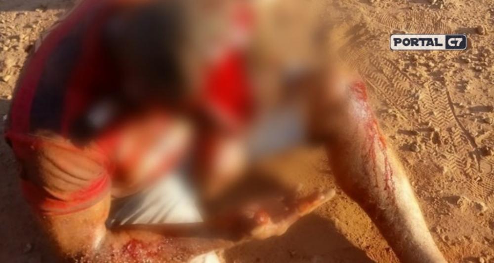 Piauí: suplente de vereador perde parte do couro cabeludo em acidente
