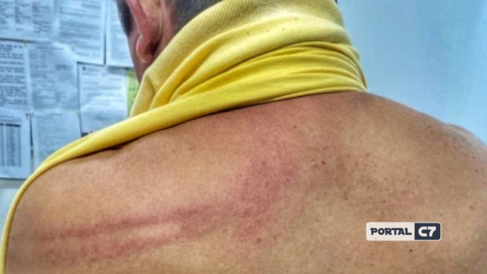 Prefeito foi submetido a exame de corpo de delito com marcas vermelhas nas costas.
